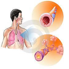 obat bronkitis